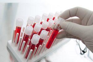 Изменения в составе крови телят