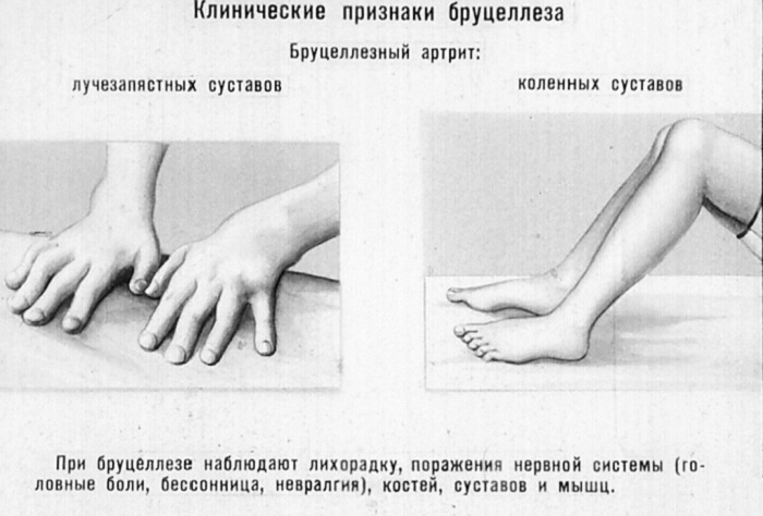 бруциллез людей