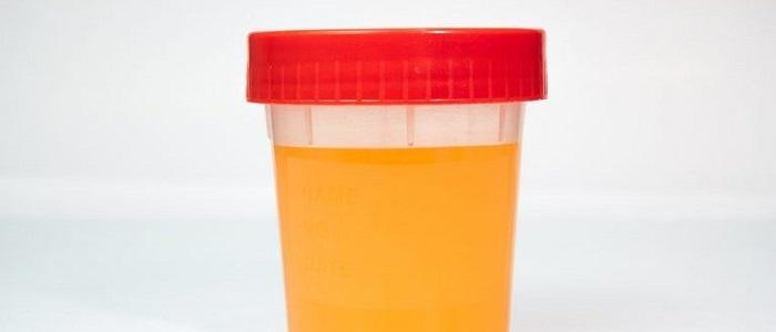 Оранжевая моча